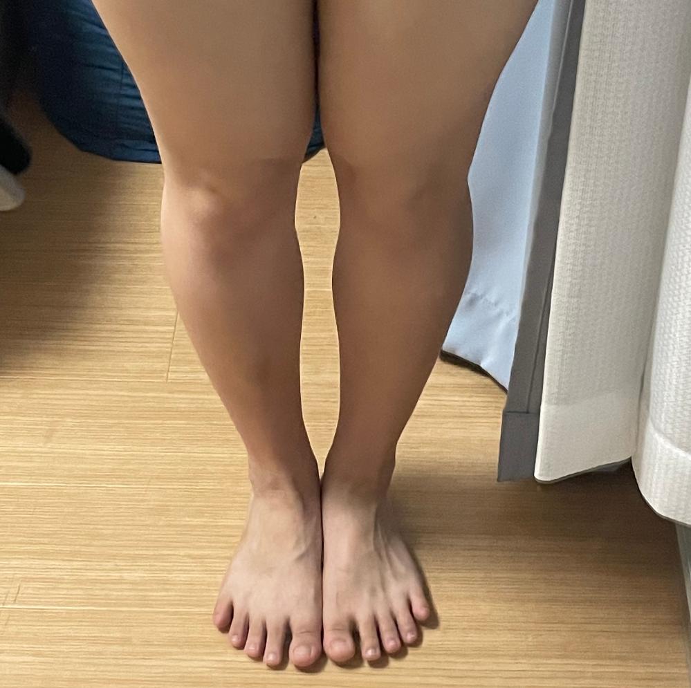 私は膝下のO脚です(汚い足ですみません) YouTubeでO脚を治すトレーニングを見つけて何種類かやったのですが 膝を固定したまま外側に足首を倒すタイプと内側に倒すタイプがありました どっちが正しいトレーニングですか? またオススメのトレーニングはありますか?