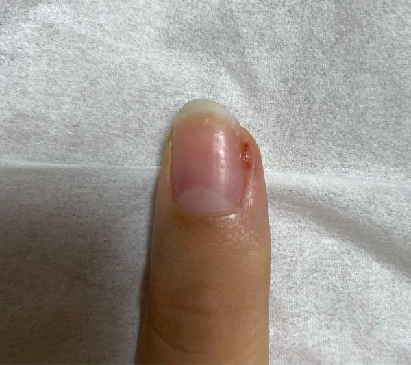 ⚠️閲覧注意な画像があります⚠️ 最近セルフでジェルネイルを始めたのですが、左手の親指のささくれをいじり過ぎて、肉芽?みたいなのが出来ました。 ドラッグストアなどで買える治る塗り薬などはありますか? 教えて頂きたいです