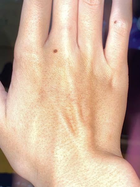 手に毛穴がありすぎて困っています。どうすれば無くなりますか?