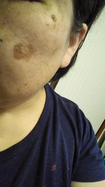 顔のシミについて質問です。 写真のような頬の大きなシミや目尻の濃くて盛りあがったシミは治療できるでしょうか? できるとしたら費用はいくらくらいでしょうか? 詳しい方、教えて下さい。