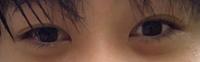 目が左右非対称なのがコンプレックスです。これくらい左右差があると普通に会話したりする時、相手は気になってたりしますかね?