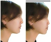 横顔がドブスで将来整形したいと考えてます。左右どちらの方が好印象でしょうか?
