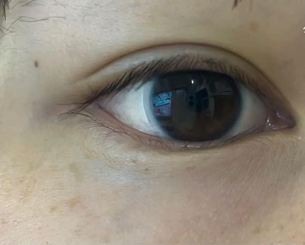私の目には蒙古襞と呼ばれるものがありますか?Google等で調べたものの分かりませんた。