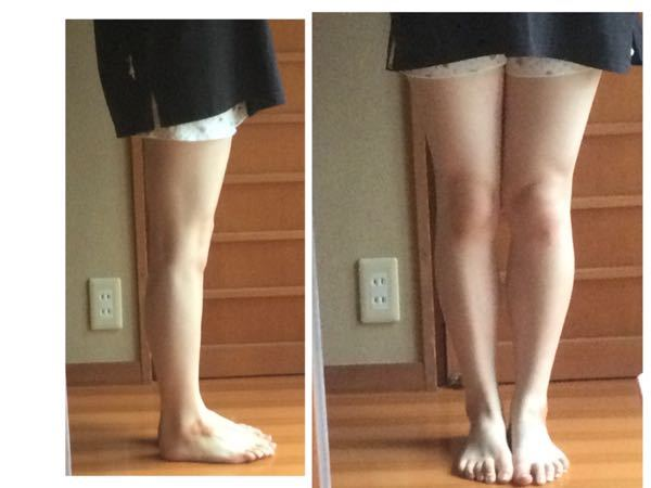 チップつけます。この写真の足の骨格を教えてください。 骨格の特徴を見てきたのですが、全てにあてはまっているような気がして、わかりませんでした.... どなたか分かる方ご回答お願いします!