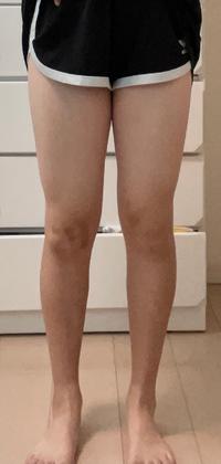 これって足太いですか? 身長159cm体重53キロです。 この足でデートに膝より10cm上くらいの丈のスカート履いていったらひかれますか?