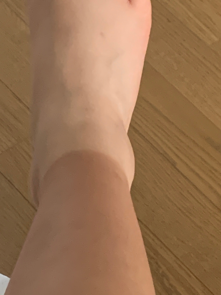靴下焼けどうしたら治りますか、高3にもなってこのレベルの焼け具合めちゃめちゃ恥ずかしいです