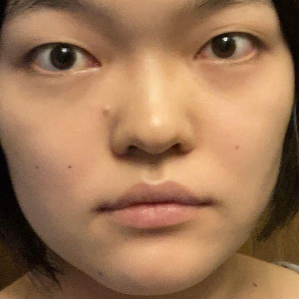 ※閲覧注意。ブスの写真あり。 この目は二重整形を受けたらマシになれると思いますか? アイプチは肌が荒れたのと不器用なので上手くできませんでした。