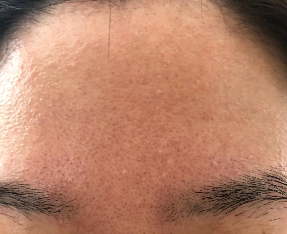 眉間の間に常に(24H)写真のような赤みがでます。 これはなぜでしょうか。 またどうすれば赤みが引くでしょうか。 色々試しましたがひかず困っています。