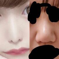 鼻整形。術後9日です。 230万かけて 鼻尖形成、鼻中隔延長、小鼻縮小、プロテーゼ をして左のような鼻にしたかったのですが 右の鼻になりました。 もう左になるのは不可能でしょうか?