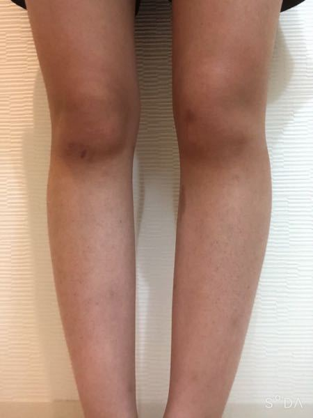 まだこのO脚は治りますか。 (足が汚いのは無視してください...)