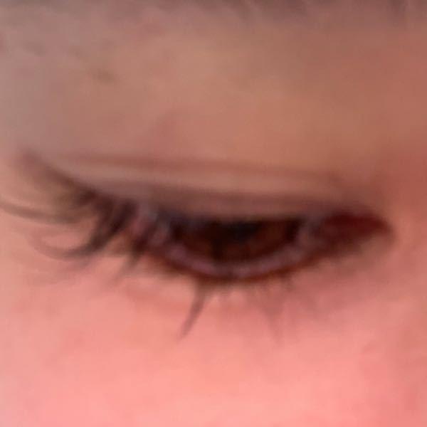 二重埋没をして2週間経過しましたが 右目だけこのような感じなのですが この元々ある奥二重の線と埋没した部分の線の真ん中の皮膚がぷくっとして見えるのですが 埋没の線のくい込みが悪いせいなのでしょ...
