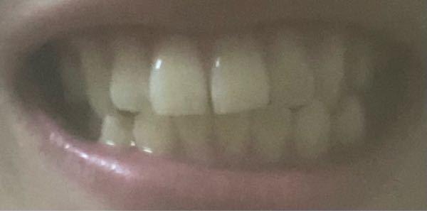 大学1年男です。 汚い画像失礼します。 私の歯並びはごく一般的な人に比べると汚いですか?