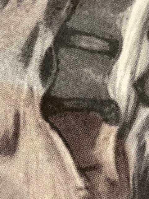 現在20歳の者です。現在ヘルニアを患っており、6ヶ月間薬による保存治療をして参りました。 1回目のMRIから4ヶ月経ち、2回目の検査をした結果、斜めに大きく飛び出ており手術を主治医から勧められま...