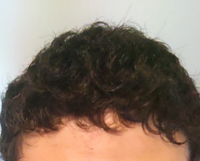 高校1年生男子です。 自分はこのようにかなり強い天然パーマなのですが、この髪質でスポーツ刈りにしても変にならないでしょうか。 今までは丸刈りにしており、髪型を変えてみようと思ったものの、どうすれば良いのか分かりません。  またこの髪質におすすめの髪型、整髪料等ありましたら教えていただけると幸いです。  よろしくお願いします。