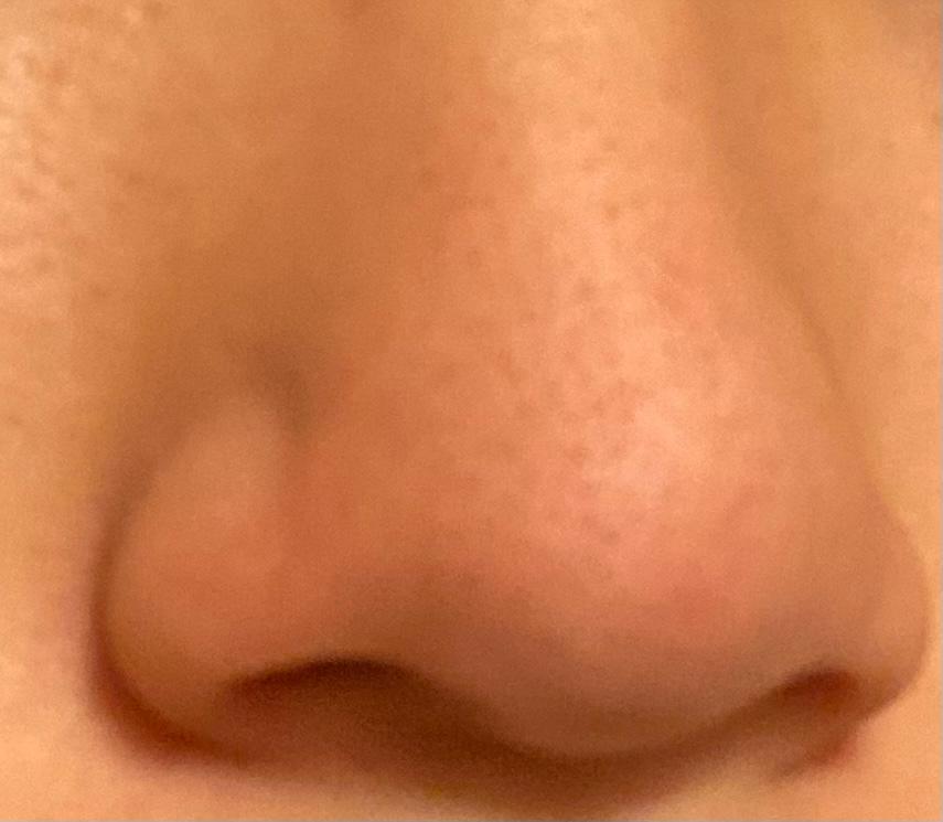 鼻が毛穴が開いて黒ずんでいます 現在高校生ですが、これはもう一生ツルツルの毛穴のない綺麗な鼻にはなれないのでしょうか?ちょっとマシにはなる程度ですか? どのようなスキンケアをすればいいのかも分かりません。