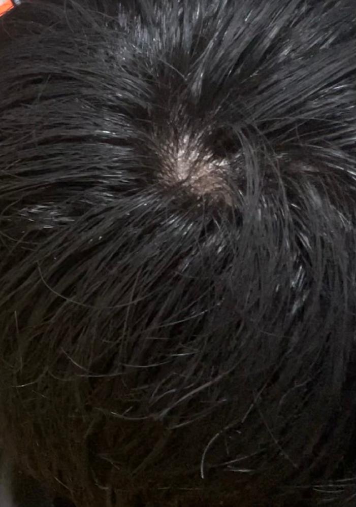 高校生1年生です。 髪が濡れている状態ですがつむじがすごく薄い気がします。 つむじというか全体的に薄くなっていて髪も細くなっています。朝も髪をセットする時に必ずつむじが割れてしまいます。 これっ...