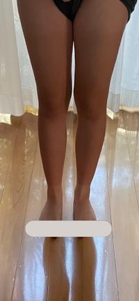 中学3年女子です。 最近地雷系に憧れて自分磨きをしていこうと思い始めました。 この脚は汚いですしふくらはぎも太ももも太いですよね? 日焼け止めは塗っているのですが日焼けして黒くなってしまいました(´・ ・`) 地雷系の方や量産系の方も足が白くて細くて長くて綺麗ですが、どうしたら綺麗になりますか? 地雷系の方や量産系の方にぜひ教えて頂きたいです。