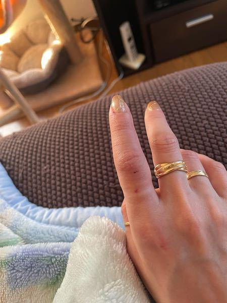 野良猫に噛まれました。 昨日野良猫同士喧嘩して片方が一方的にやられて顔から血を流しておりました 血を流してる方の野良猫ちゃんは妊娠もしており病院へ連れていきました 動物病院で注射を打つ際に暴れてしまい指を噛まれてしまいました。 次の日腫れて指も痛く動かせません 何科に行くべきなのでしょうか。。。