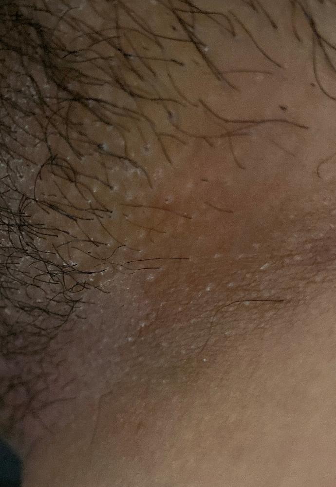 汚くてすいません。 陰部が痒くて見てみたら Vラインが白くなっています。 カンジダかなーと思いながら 月曜日婦人科に行きますが、 痒みに耐えれません。