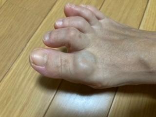 足の親指の付け根が30年来腫れています。昔病院で検査してもらい(中の組織をとって調べた)医師には血管の塊? みたいに言われました。痛みがでたら外科手術が必要と言われました。その時は痛くなかったの...
