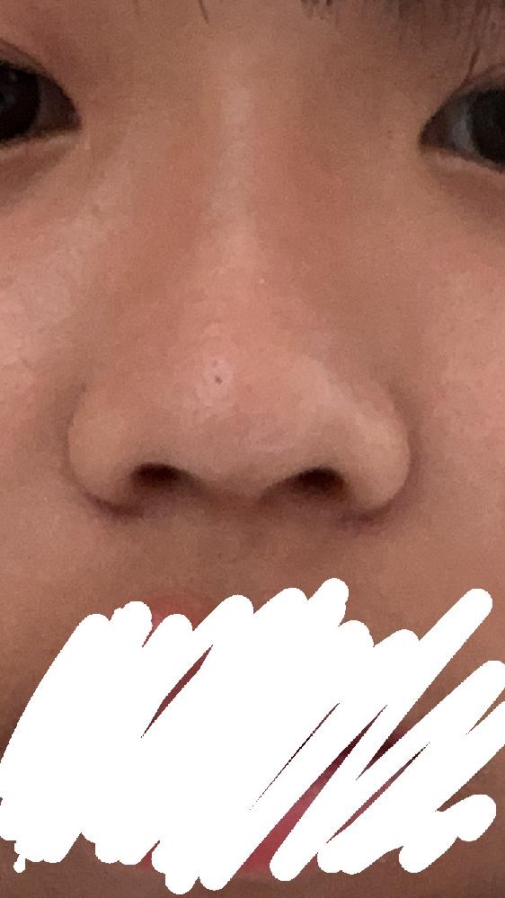 高校1年生女です 鼻にコンプレックスがあるのですが、 写真の鼻をどうすれば良くなりますかね? とても鼻が低く、鼻も広がっています。 少し前にマッサージをやってみたのですが、 前より鼻の皮膚が固く...