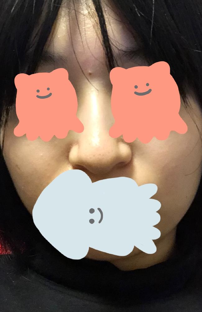 全然肌が綺麗になりません。 夜の洗顔だけではだめなんでしょうか。 金もないし使いたくもないし親には言えないし言いたくもないので今ある洗顔フォームだけで肌を綺麗にしたいです。