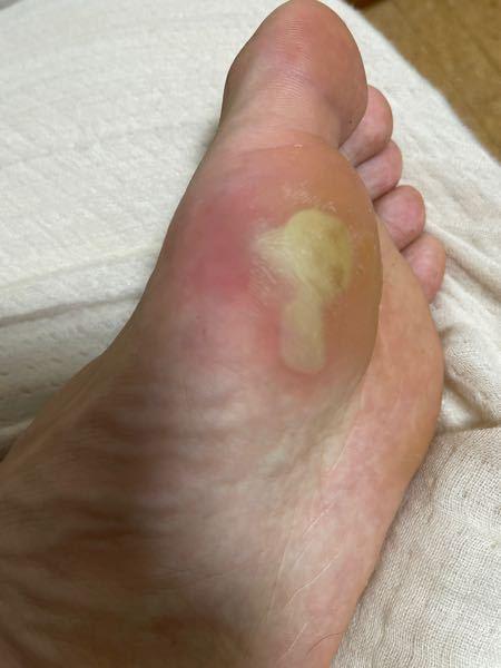 高校1年生です。 陸上をしています。中距離です。 1500mの試合で左足の母指球の皮が黄色くなって、写真の左側の部分がとても痛いです。 これは皮を破った方がいいのでしょうか? また、どのようにしたら治るのでしょうか? 急いでいます!回答お待ちしています。。