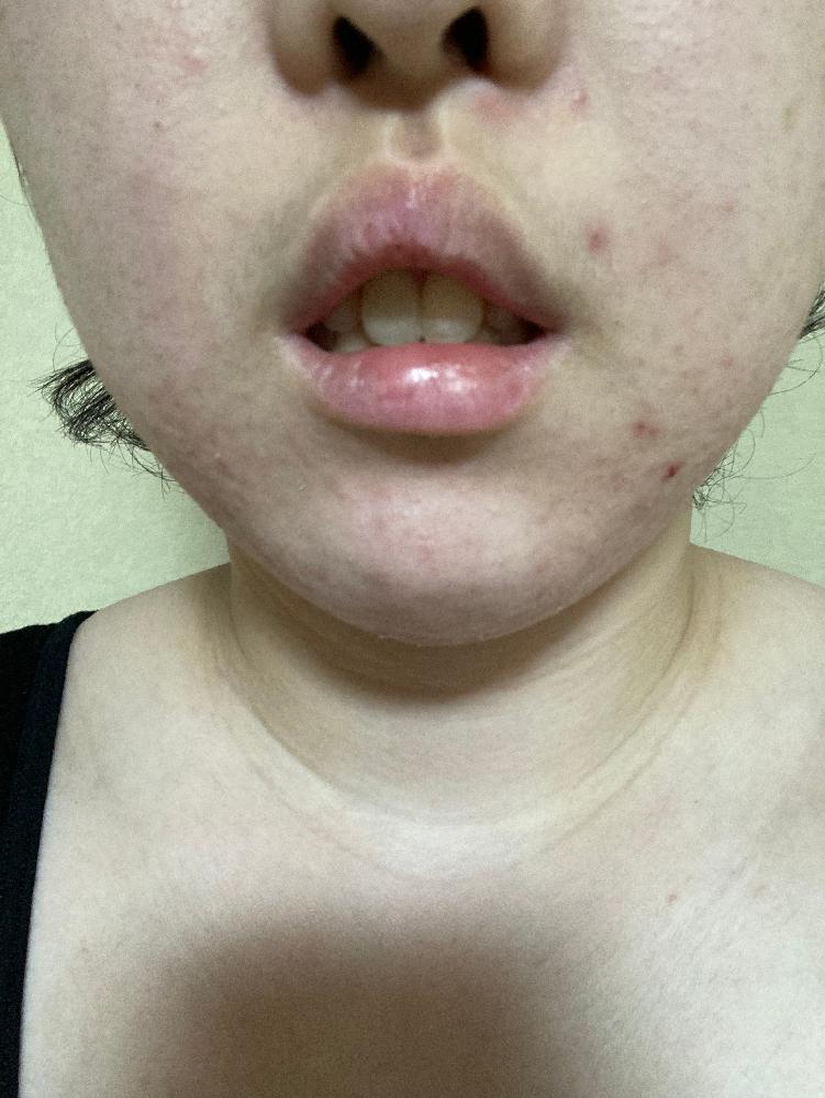 写真あり。唇が自然に閉じません。お口ポカンはどうすれば治りますか??唇を意識的に強く閉じないと唇が閉じません。口を強く閉じると下顎に梅干しができます。 長年のコンプレックスなのですが、 どこの美...