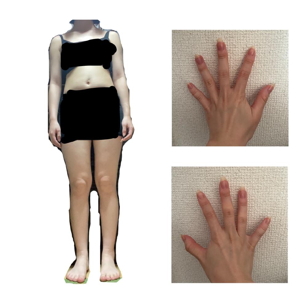 骨格診断をお願いしたいです。 身長156cm、体重46kgです、お見苦しいですが画像添付致します。 自分ではストレートぽいのかなと思うのですが客観的に見て欲しいです。