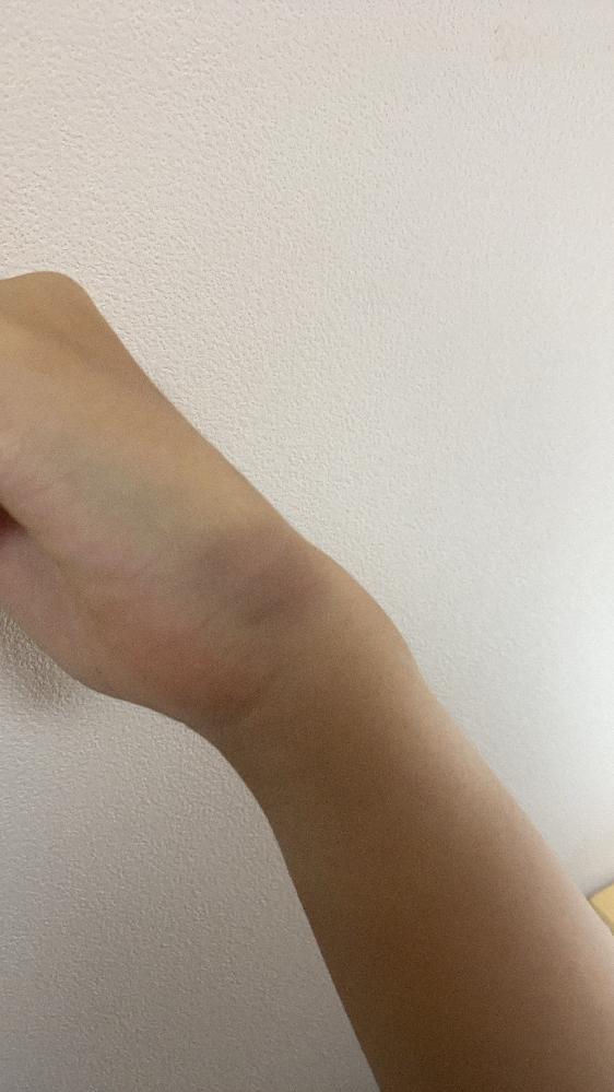 体育のソフトボールでバッティングをするたびに左手の側面が腫れます。グリップを下に持ちすぎているのでしょうか?またこれは打撲ですか?手首を回したり手をつけると痛いです
