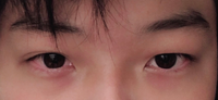 右瞼と左瞼が違うんですけど同じにはできないでしょうか?