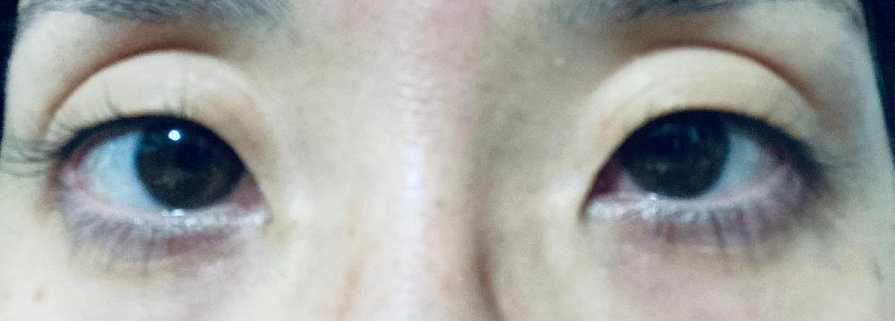 埋没法での二重整形を考えています。 瞼が薄く目の上の窪みがあり、現段階ではアイプチやアイテープ等をしても二重には出来ません。 このような瞼でも埋没法は可能でしょうか? 家族に相談する必要があるため、出来れば行く前に知れると良いなと思い相談させて頂きました。 知識のある方や経験のある方、どうぞよろしくお願いします。