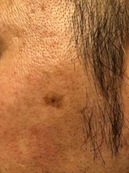このシミは皮膚ガンでしょうか? ・左ほう骨あたり。 ・もみあげ横。 ・少なくても5年以上経過。 ・40代後半男性。 ・中心の周りの薄いシミは数年前より広がっている。 ・中心のやや濃いのは大きくな...