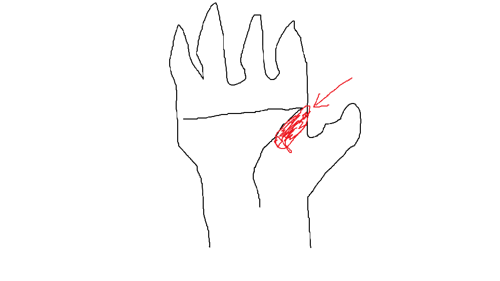 pcゲームをしていたら、右手の人差し指の下らへんが痛くなり少し腫れています。 ゲームはFPSでマウスを使っていました。 これは腱鞘炎ですか?