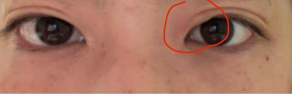 目がいきなり腫れました。 アレルギーでしょうか? 痛くはありません。 反対の目はふつうです。 ものもらいではなさそうですが何かわかりますか?