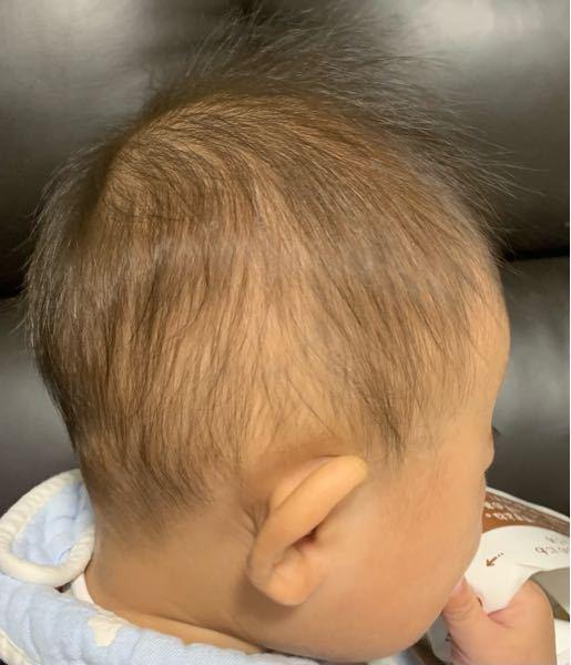 これは絶壁ですか? 頭の形はいい方ですか? 生後8ヶ月ですが もし絶壁なら まだ治りますか?