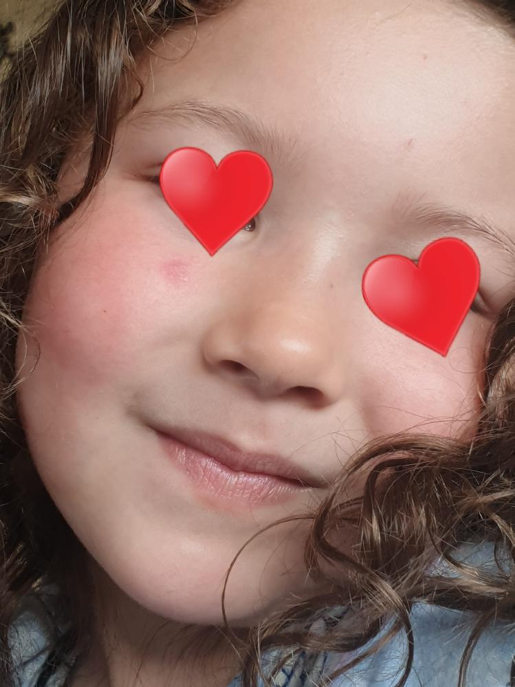 3週間ほど娘の目の下に赤い発疹が1つあり消えません。 海外在住なのですが、医者3人に見せたところ1人目はとびひ、後の2人は特に気にしなくて良いとのことでした。保育園では感染症を疑われ先週は3日ほ...