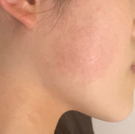 この写真あるよう、ほっぺたというより、えらの部分が赤く毛穴が目立ち、ざらざらします。特に肌が荒れていることはなく、幼い頃からこの部分のざらつきや赤みはありました。治す方法はありますか?