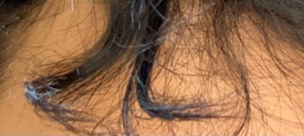 前髪がこのようになるのですが対処法はありますか?