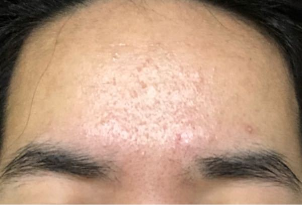 おでこの肌荒れがいつまで経っても治りません。 ニキビというより毛穴がどうにかなってる気がします。触るとザラザラしていて、洗顔後の眉間には角栓がよく見えるようになります。 おでこをツルツルにした...