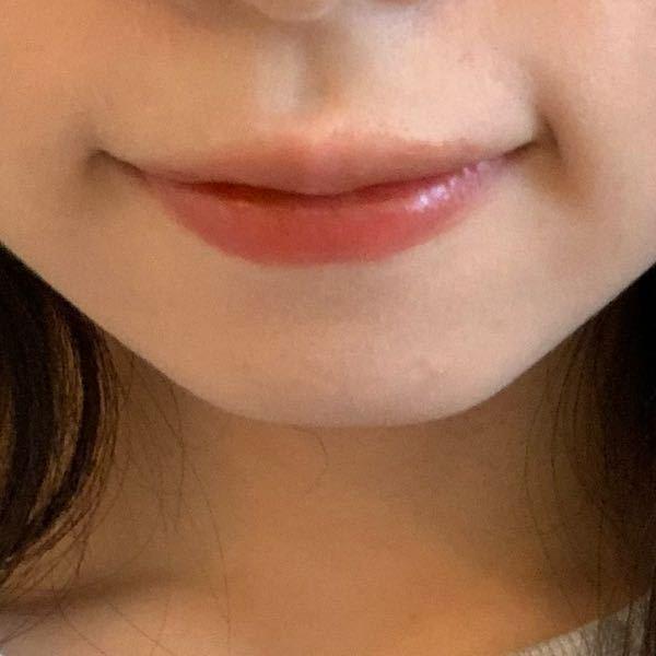 22歳普通よりちょい痩せ体型の女です。 これって、マリオネット線というものですか?? 口の歪みは自覚しています( ; ; ) マッサージとかで歪みもマリオネット線も消えるのでしょうか、それとも整形しないと消えませんか? 幼少期にはなく、多分小中学生の頃からあります、、 頬に脂肪が多いから笑うとこうなるもんだと思っていましたが、老けて見えると言われて心配です、、。