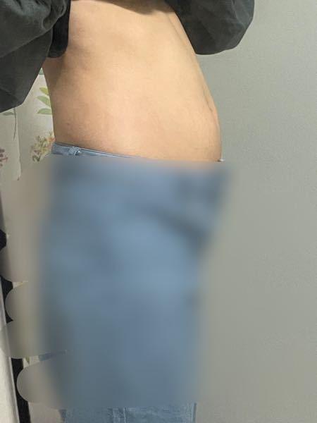心療内科の先生に、そろそろ運動制限入りそうだねって言われた矢先に、1週間で8キロ以上増えてしまって、食事の量は変わらない。 数値も以上なく、ただお腹の張りと浮腫があるくらいで周りは前より痩せてる。どんどん痩せてるって言うのに増えたまま戻らない。 47キロもあるのに、生理は来ないし、血圧は80〜100を彷徨ってる。 先生には一日3食食べて、冷たいのは取らないように腸を動かす事をしっかりしようって言われて終わった。 浮腫とか水分が溜まって排出できないからって親も先生も教えてくれたけど、ダイエット始めないための嘘な気がして信じれないです。 正直にこのお腹は脂肪ぽくないですか?