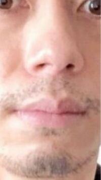 40代独身男です。 髭は清潔感がないですか?