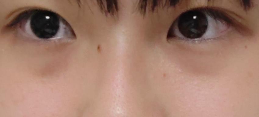 皆さんから見て左の目の二重ラインが重たいのが悩みです。右見たくしわくちゃの線がもっと奥に入ってくっきりな二重にしたいです。 どうしたら良いですか?