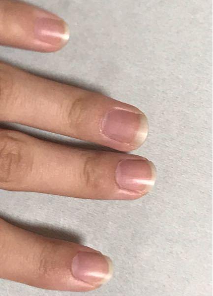 爪についてです。爪のピンクの部分を伸ばしたかったのでネイルホリックキューティクルオイルを毎晩爪と爪の裏に塗ってるのですが全然伸びません。使うものが間違えているのか、塗り方が間違えているのかも分か...