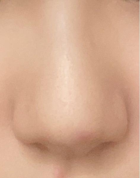 団子鼻ですか? 団子鼻の基準はなんですか?