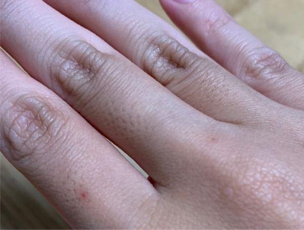 指の毛穴についてです 私は顔·腕·足などの部位はあまり毛穴は目立たないのですが 指の毛穴だけすごく目立っていて友達からも指摘されるほどです。友達とお揃いで指輪を付けようとした時も、自分だけ毛穴が目立っていて恥ずかしかったです 昔、カミソリで指毛を処理した時に赤いブツブツが出来てしまってから更に指がコンプレックスになってしまって どうにかしたいです 何かいい対策はないでしょうか?