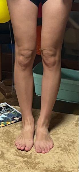 20代半ばなんですが 膝がめちゃくちゃ汚いです。 本当に汚いです。 改善方法を教えていただきたいです。