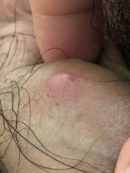 閲覧注意 陰茎の中間くらいにこのような出来物が3日程前からできてしまっているのですが有害なものでしょうか?包皮の上にできていて、触ると少し痛みがあります。最後に性行為をしたのは半年ほど前なので性...