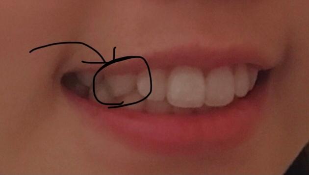 ここの歯って普通尖ってますか?